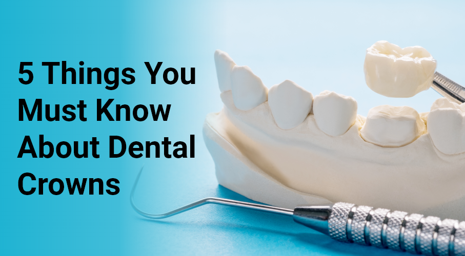 5 Things You Must Know About Dental Crowns